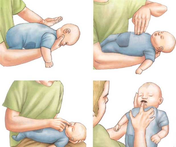 ребенок-задыхается-первая-помощь